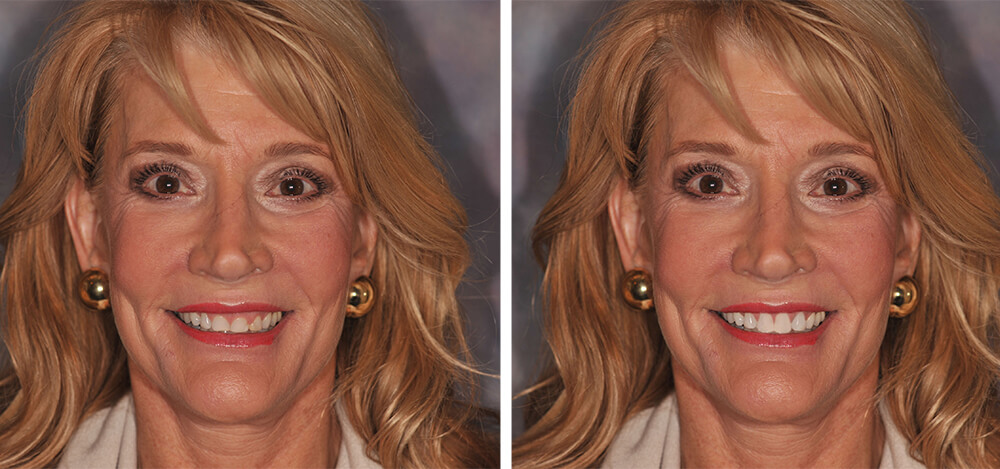 creativedental_beforeafter_ellen